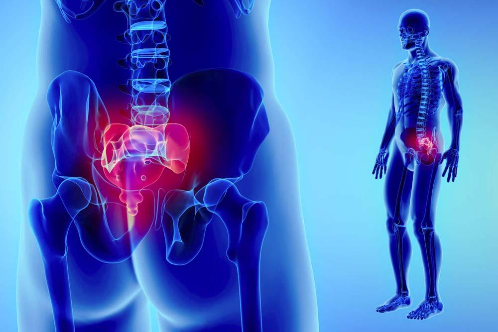 ¿Cómo tratar el dolor en el coxis?
